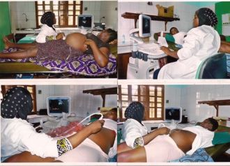 Mujeres realizándose una ecografía en el centro médico en Kegué