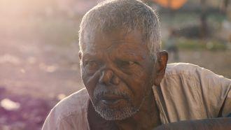 Fotografía: pxhere Retrato hombre con lepra