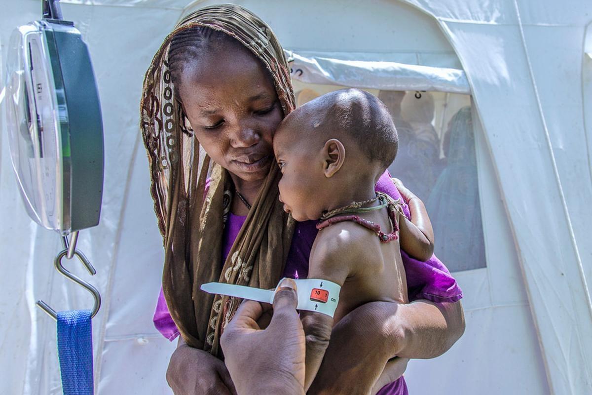 La hambruna en Nigeria (Foto de UNICEF)